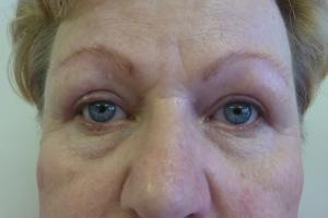 Correction of upper/lower eyelids