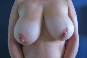 Breast modelling