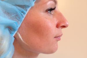 Nassenkorrektur
